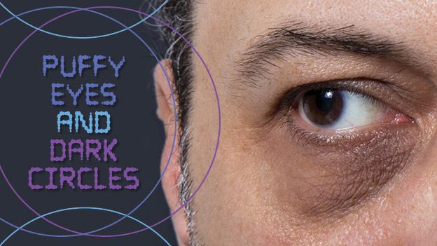 Puffy Eyes and Dark Circles